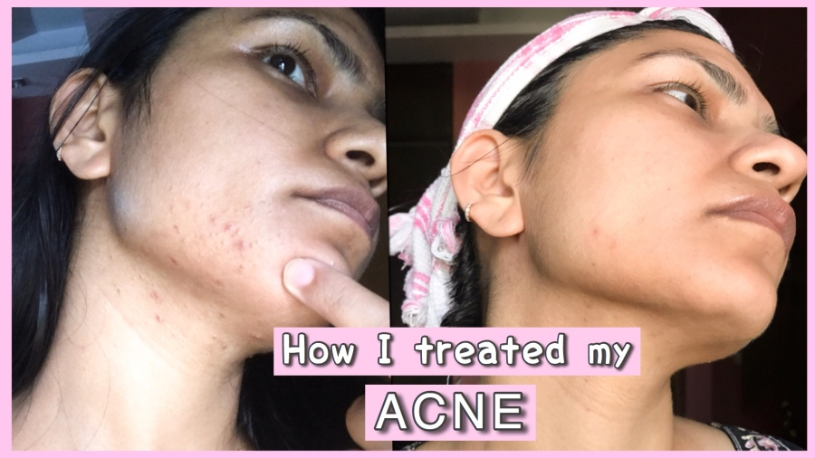 How I got rid of my Acne (At Home - Realistic Results) | Part 1 | Skin Care |  Ms Meehnia